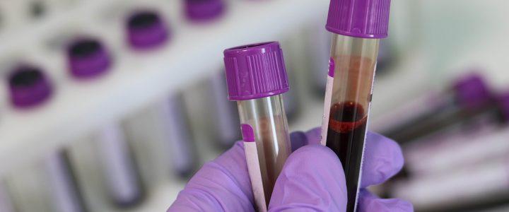 Landesprogramme PRRS und Salmonellen-Monitoring
